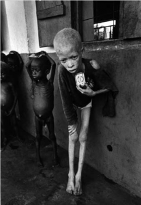 Starving nine-year-old Ibo albino boy, Biafra 1969 © Don McCullin, Contact Press Images